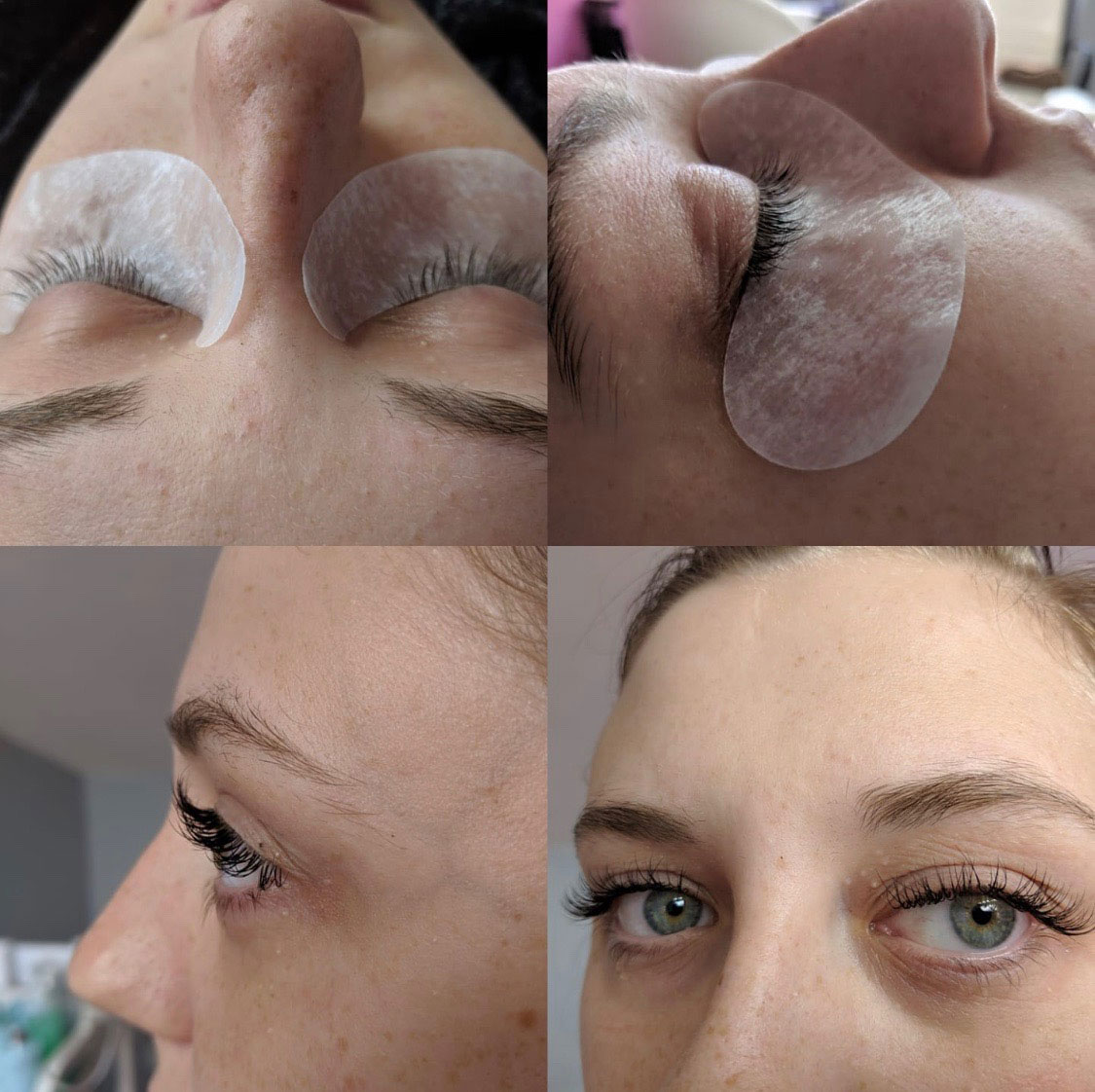 an image of eye treatments